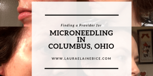 Microneedling in Columbus, Ohio Finding a Provider