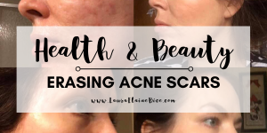 health and beauty erasing acne scars